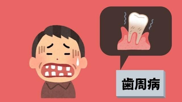 歯周病の中年男性
