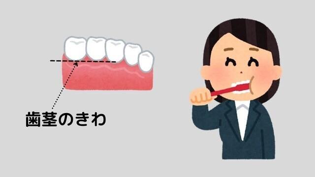 歯磨きのしかた